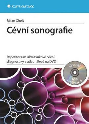 Cévní sonografie