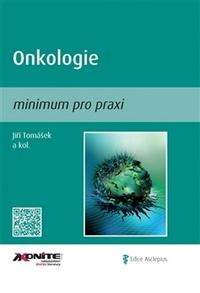 Onkologie. Minimum pro praxi