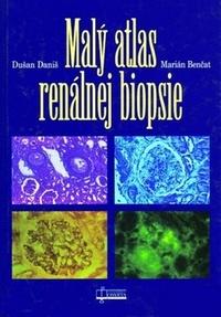 Malý atlas renálnej biopsie