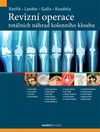 Revizní operace totálních náhrad kolenního kloubu