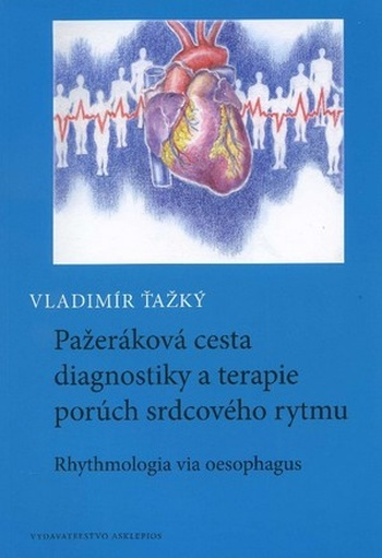 Pažeráková cesta diagnostiky a terapie porúch srdcového rytmu