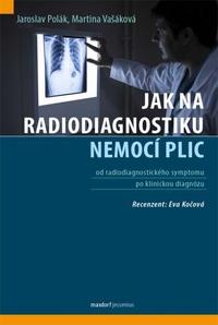 Jak na radiodiagnostiku nemocí plic