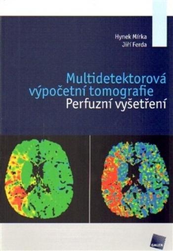 Multidetektorová výpočetní tomografie. Perfuzní vyšetření